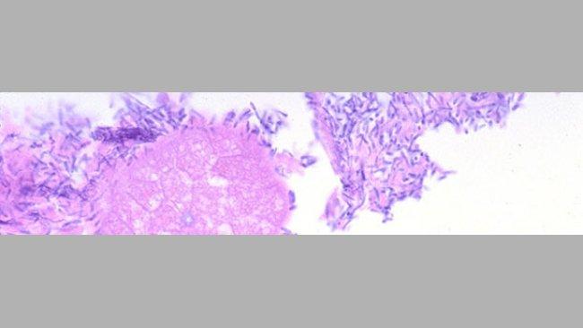 Dünndarm eines Ferkels mit Durchfall einhergehend mit einer Infektion durch Clostridium perfringens Typ A.