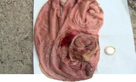 Magengeschwür mit akuten Blutungen