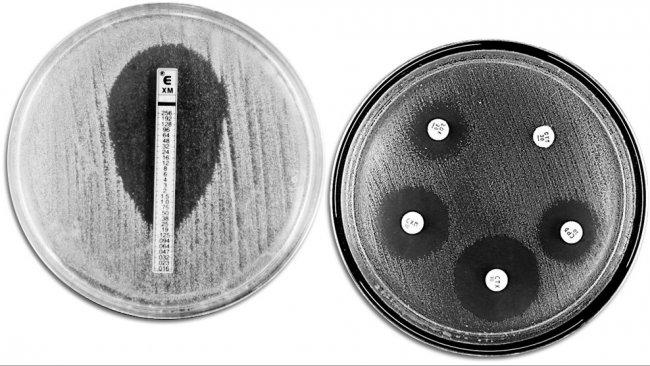 Klassische Verfahren zur Analyse der Antibiotikaresistenz: Das Bild zeigt auf der linken Seite einen E-TEST zur Messung der Mindestkonzentration von Antibiotika, bei der das Bakterienwachstum verhindert wird. Die rechte Seite zeigt einen Test zur Bestimmung der Antibiotikaempfindlichkeit mit verschiedenen Wachstumshemmungszonen, die durch die Antibiotika hervorgerufen wurden.