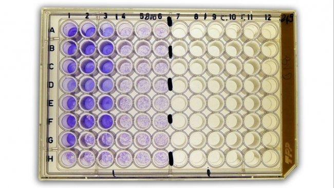 Abbildung2b: Virusneutralisationstest (NT) zum Nachweis von anti-BVDV (bovines Virusdiarrhö-Virus)-Antikörpern im Serum.