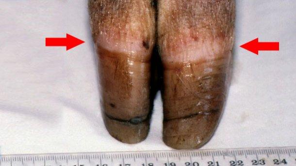 Abbildung 1: Kronsaum des Hufs [Pfeil]. Zu beachten ist das ungleiche Wachstum und die Rissbildung im Horn.