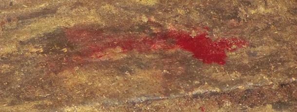 Wässriger Kot mit Blutbeimengungen