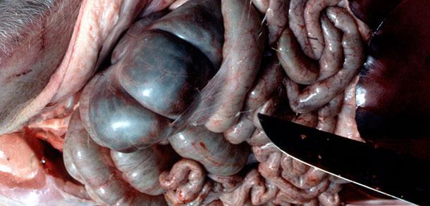 Fibrinfäden in der Bauchhöhle bei akuter APP.