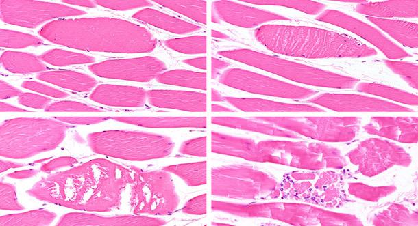 Verschiedene Stadien der Muskelfaserdegenration/ Nekrose