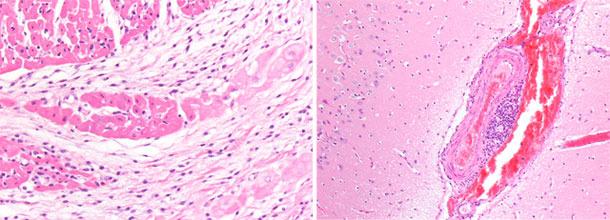 Verdickung und Stauung der Venen der rechten Hirnhälfte. Myokardium, rechter Ventrikel. Basophile, fokale Nekrose des Myokardiums mit Mikrovakuolisation.