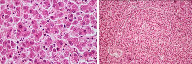 Desorganisation und diffuse, ballonierende Degeneration der Hepatozyten